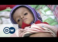 Under Saudi Bombardment, 33% of Yemenis Food Insecure
