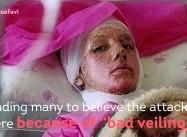 Iran Pressures Media over coverage of Acid Attacks on Women