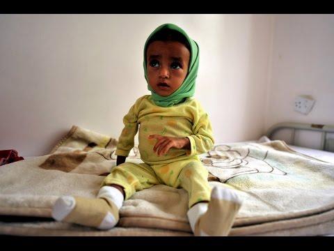 War-Torn Yemen faces Disease Outbreaks w/out Humanitarian Corridor