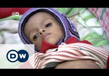 Under Saudi Bombardment, 33% of Yemenis Food Insecure