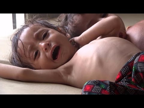 Risk of Mass Starvation Rising Rapidly in Africa, Yemen