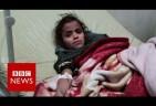 Saudi-Trump War on Yemen: Cholera Cases could Reach 130,000 in Two Weeks