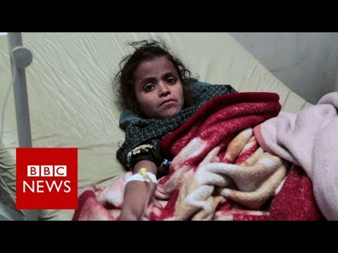 Saudi-Trump War on Yemen: Cholera Cases could Reach 130,000 in Two Weeks