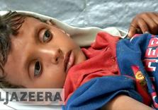 Saudi Arabia urged to end Yemen blockade
