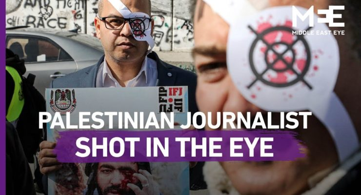 #MuathEye: A clash between the Israeli Occupation's rifles and the Palestinian eyes opened to its violations